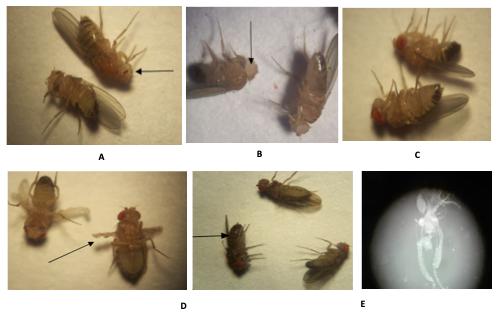 Morfotipos de bacterias gram negativas y gram positivas aisladas del tracto digestivo de Drosophila melanogaster